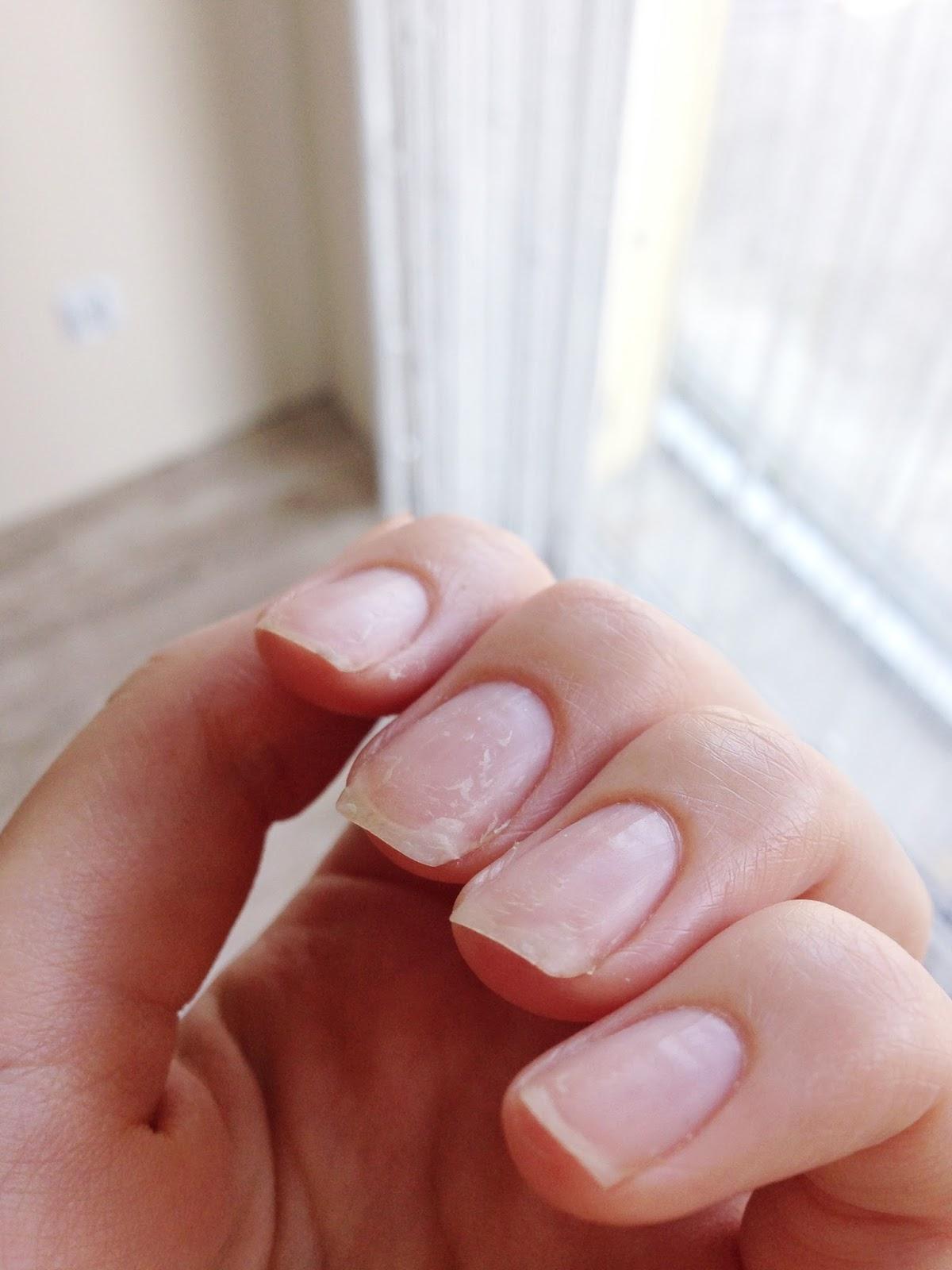 paznokcie zniszczone po hybrydach