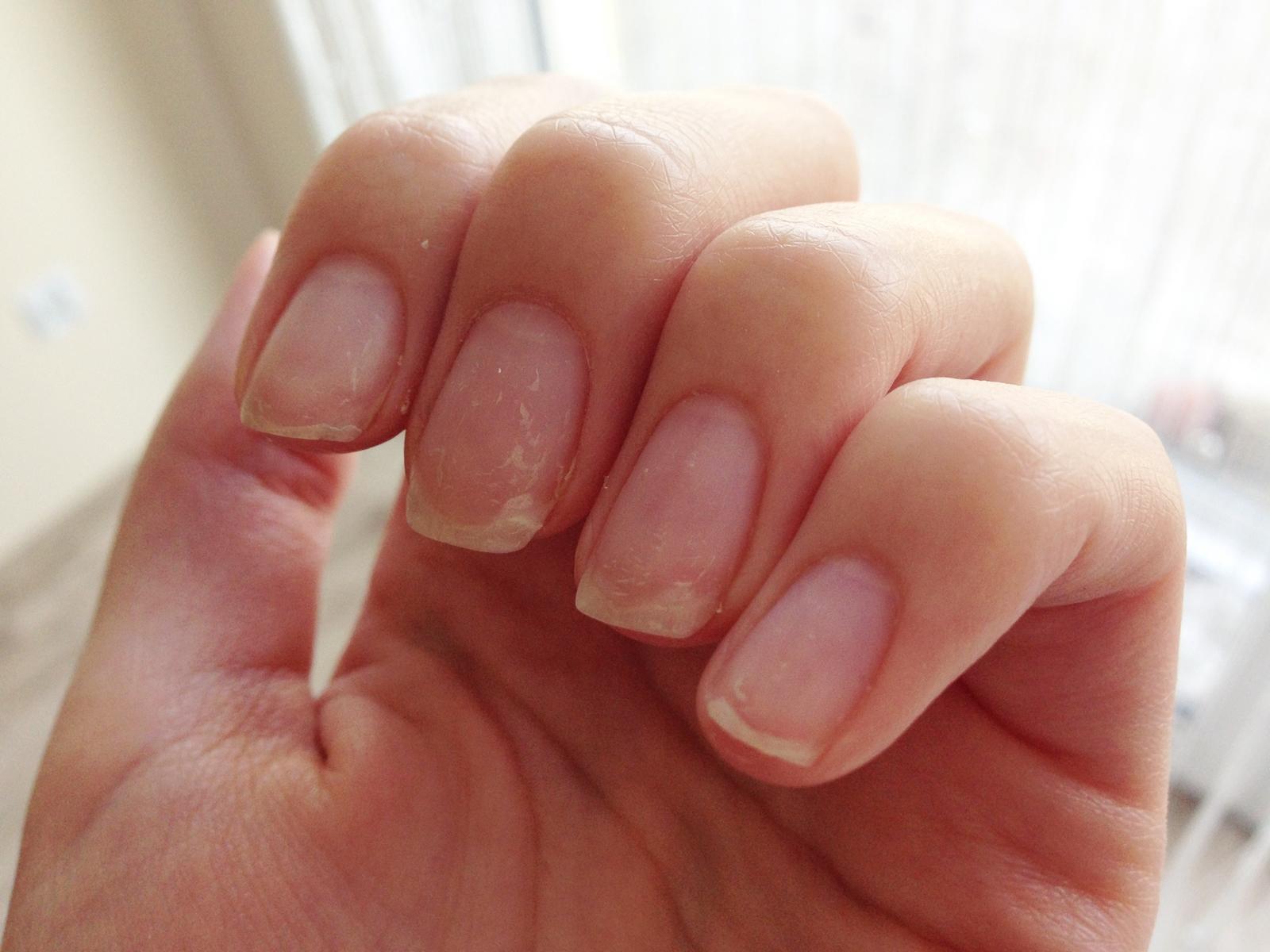 zniszczone paznokcie po hybrydach