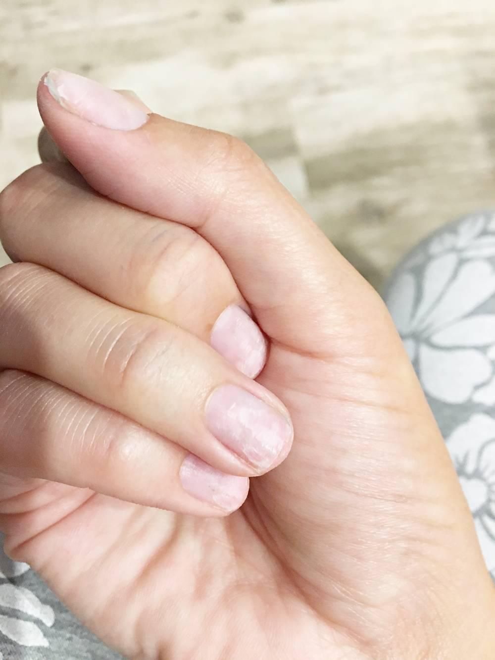 rozdwajanie paznokci